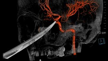 Boy survives knife impaling face just below eye, brain