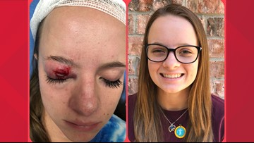 Waco girl shot in eye with firework on 4th of July loses sight