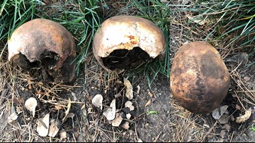 New homeowner finds human skull buried in flower bed of Houston-area home