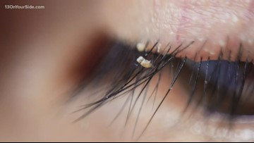 Doctors warn about lice infestations in eyelash extensions